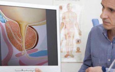 Трибестан опыт применения при лечении простатита