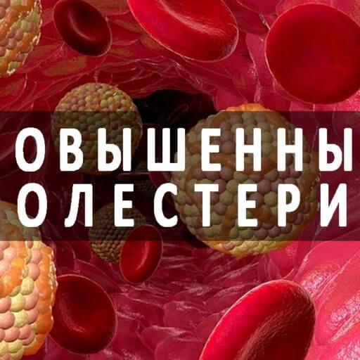 Трибестан – применение при высоком холестерине