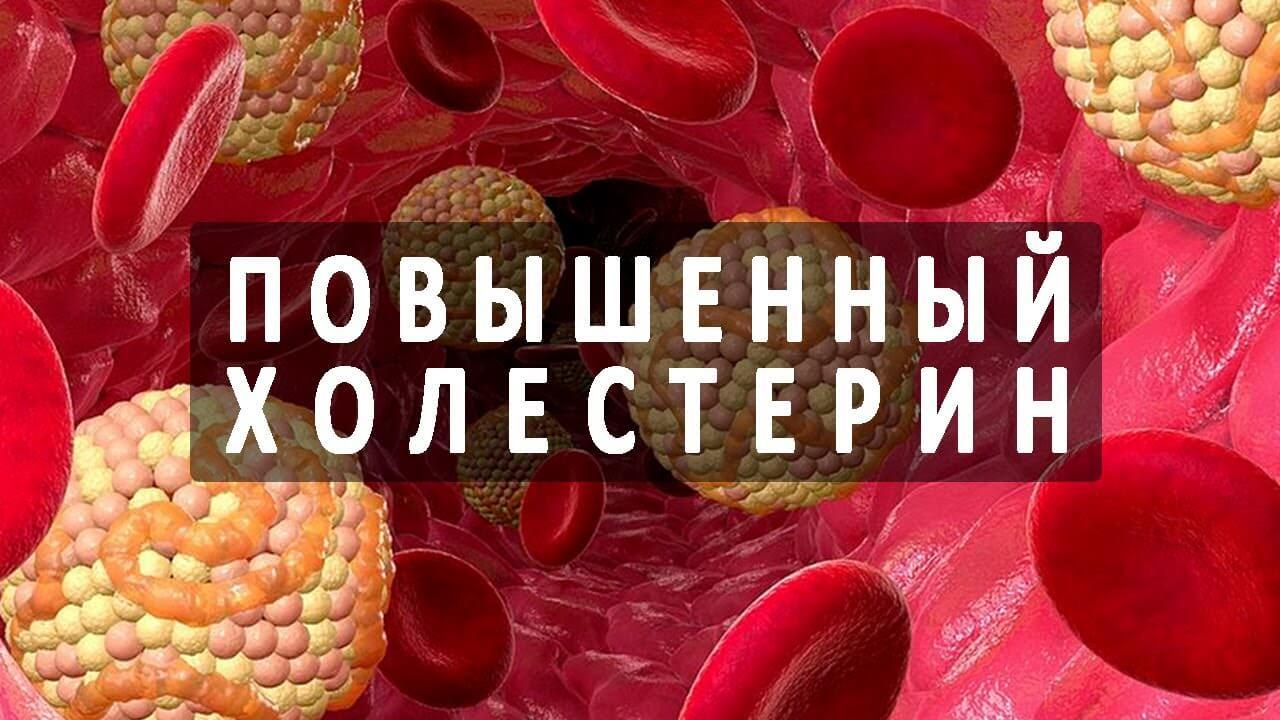 Трибестан - применение при высоком холестерине